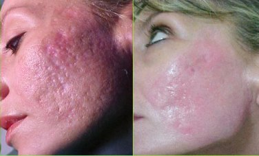 Revitol Scar Removal Cream For Acne And Scar Tissues Treatment